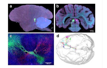 کمک تصویربرداری نوین به شناخت بیشتر مغز
