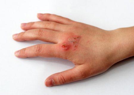تشخیص سریع عفونت زخم با کمک حسگرهای کم هزینه