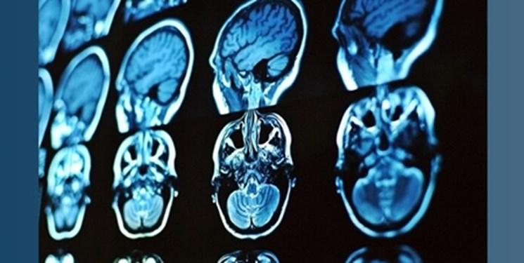 تولید محصولی جدید برای تشخیص و درمان بیماریهای مغزی