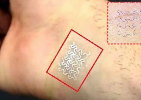 """ثبت فناوری تولید """"پچ پوشیدنی هوشمند"""" در آمریکا"""